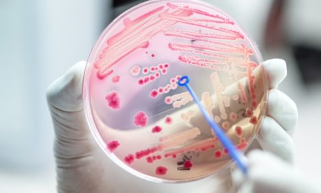 Progress in discovering new antibiotics is imperative